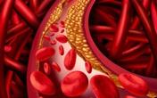 Xu hướng hạ mỡ máu bằng thảo dược - Đơn giản, hiệu quả và an toàn