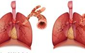 Bí quyết hỗ trợ long đờm, giảm ho, cải thiện khó thở do viêm phổi mạn tính từ thiên nhiên