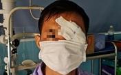 Người đàn ông bị cò mổ thủng mắt trái