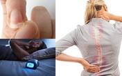5 dấu hiệu nhận điển hình cảnh báo cơ thể thiếu canxi trầm trọng, muốn khỏe mạnh đừng chủ quan!