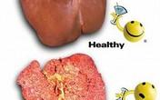 Viêm gan siêu vi B & C mãn tính, bệnh nào đáng sợ hơn?