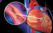 Chuyên gia Y tế Malaysia nói về bệnh lý mắt, tim mạch.