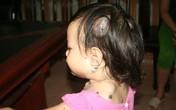 Xót xa nhìn những cục u máu ngày càng lớn trên khắp cơ thể bé 5 tuổi