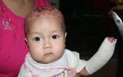 Nao lòng ánh mắt trong veo của bé 5 tháng tuổi bị rụng ngón, lở loét khắp cơ thể