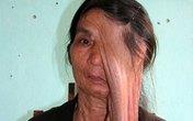 40 năm mang khối u như giọt lệ khổng lồ