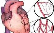 Bệnh viện Đa khoa tỉnh Thanh Hóa thực hiện thành công can thiệp tim mạch