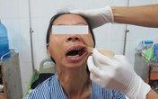 Người phụ nữ 30 năm không há miệng đã phục hồi tốt
