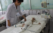 Thương cảm hai bé bị bỏng nặng do chập điện