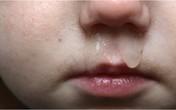 Chảy nước mũi, ho đờm xanh không cần dùng kháng sinh