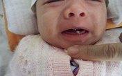 Những đồn đại quanh bé mới sinh đã mọc răng cửa