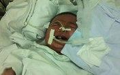 Bé gái 15 tháng tuổi mắc 6 chứng bệnh