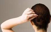 Nguyên nhân khiến bạn bạc tóc sớm