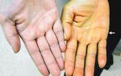 Những thay đổi trên da báo hiệu bệnh gan