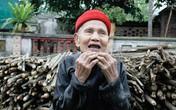 Hà Nội: Cụ ông 90 tuổi mọc lại cả hàm răng