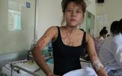 Nghi án cô gái trẻ bị tạt axit vì hận tình