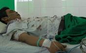 Phụ xe nghi bị bảo vệ bến xe đánh phải nhập viện