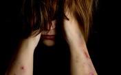 Bé gái 10 tuổi tấn công tình dục bé trai 4 tuổi