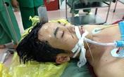 Kinh hoàng một thanh niên bị đâm xuyên đầu