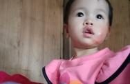 Hình ảnh mới của bé gái dân tộc bị bỏng nặng sau tai nạn ngã vào bếp lửa