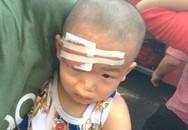 Xe khách bị ném đá vỡ kính, bé 23 tháng tuổi trọng thương