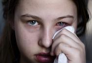 Nuôi dưỡng mắt khỏe - Đẩy lùi đau mắt đỏ