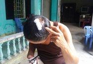 Cha con chi hội trưởng người mù bị đánh dã man tại nhà