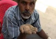 Người đàn ông ăn cát suốt 25 năm