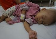 Bé Phạm Hữu Hùng có thêm cơ hội để tiếp tục chạy chữa ung thư võng mạc