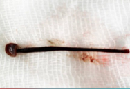 Gắp con đỉa dài 4cm sống trong mũi cô gái trẻ