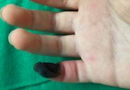 Con trai mất 1/3 ngón tay út vì cha mẹ tự chữa loại mụn bé tẹo này tại nhà