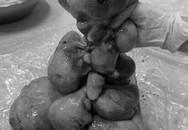Rùng mình với khối u gần 7kg trong tử cung người phụ nữ trung niên ở Bình Thuận