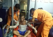 Thuyền viên bị bỏng nặng trên biển được cứu nạn kịp thời