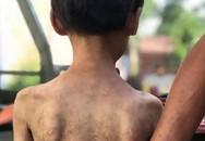 Phẫn nộ: Bé 7 tuổi đầy sẹo trên người vì bị bà phạt bằng kìm và dây cáp