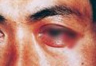 """Chàng trai đi khám vì đau mắt nhưng bác sĩ bắt kiểm tra """"phần dưới"""", lý do gây bất ngờ"""