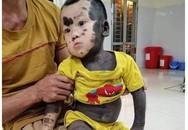"""Nhói lòng hình ảnh bé trai 20 tháng tuổi với làn """"da chó"""", mồ côi mẹ, không tiền chữa trị"""