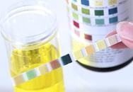 Màu nước tiểu bất thường khi dùng thuốc có đáng lo?