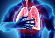Cảnh báo phổi mắc bệnh từ triệu chứng ho khạc đờm