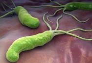 """Loại vi khuẩn làm """"mòn bao tử"""" mà WHO xếp vào nhóm gây ung thư số 1: Cực kỳ dễ lây qua 3 con đường, khuyến cáo tránh ăn 3 món để ngừa bệnh"""