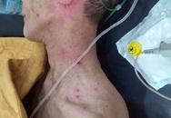 Hai cha con bị ong đốt phải nhập viện cấp cứu