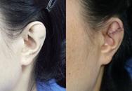Người phụ nữ giấu chồng về đôi tai dị tật suốt 15 năm