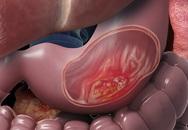 Bất luận nam hay nữ nếu miệng có 3 điểm bất thường chứng tỏ dạ dày đã tổn thương, khám ngay trước khi ung thư đến