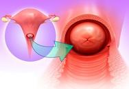 Người phụ nữ mãn kinh hơn 30 năm, đột nhiên ra máu âm đạo