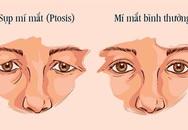 Điều trị sụp mí bằng Đông y – trẻ hóa cơ mắt, cải thiện tầm nhìn