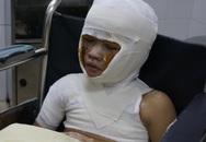 Bị bỏng xăng nặng cậu bé 8 tuổi đón Tết buồn trong bệnh viện