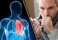 5 triệu chứng điển hình của bệnh ung thư phổi
