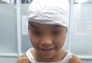 Tóc bị cuốn vào máy cưa đá, bé gái bị lột hơn 1/2 da đầu