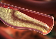 """Cholesterol cao là nguyên nhân gây bệnh tim mạch và đột quỵ sớm: Cần nắm 5 cách để """"xử lý"""" nhanh gọn chỉ trong thời gian ngắn"""