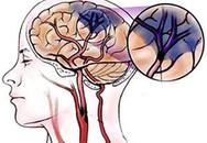 Những thói quen xấu dễ gây thiếu máu não