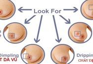Nhận dạng những dấu hiệu bất thường ở ngực