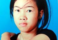 Nữ sinh lớp 8 bị rạch mặt hội đồng